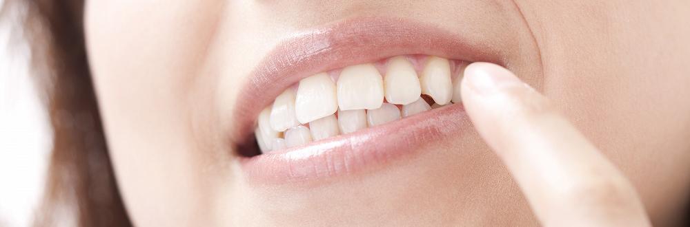 詰め物・被せ物・矯正歯科