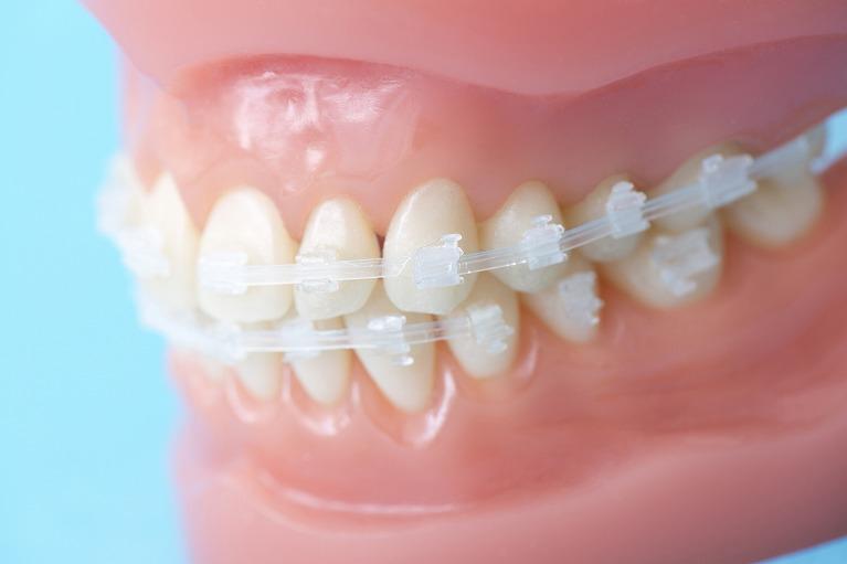 歯並びが気になる方へ